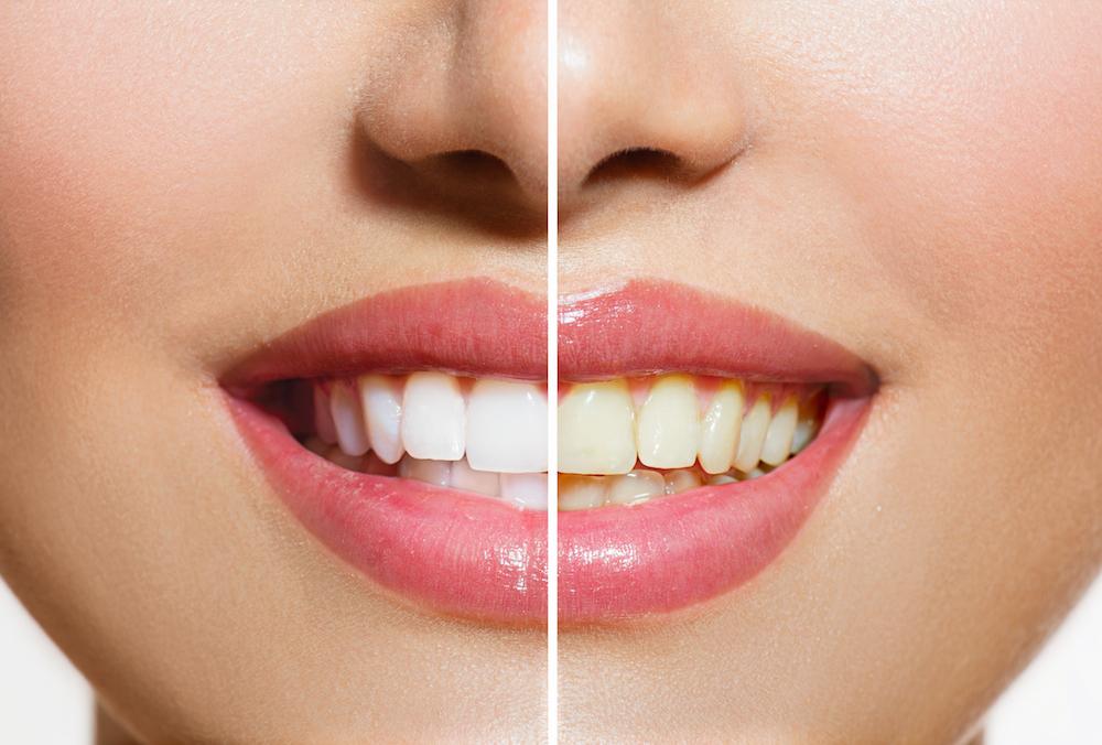 Sanger, CA 93657 Dentist